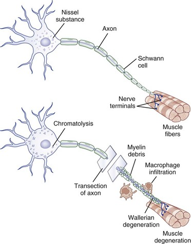 Trauma of the Nervous System: Peripheral Nerve Trauma | Clinical Gate