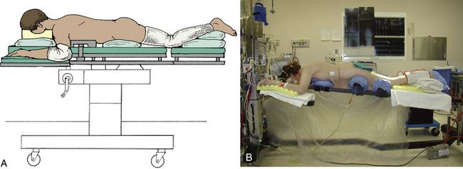 Laminotomy, Laminectomy, Laminoplasty, and Foraminotomy   Clinical Gate