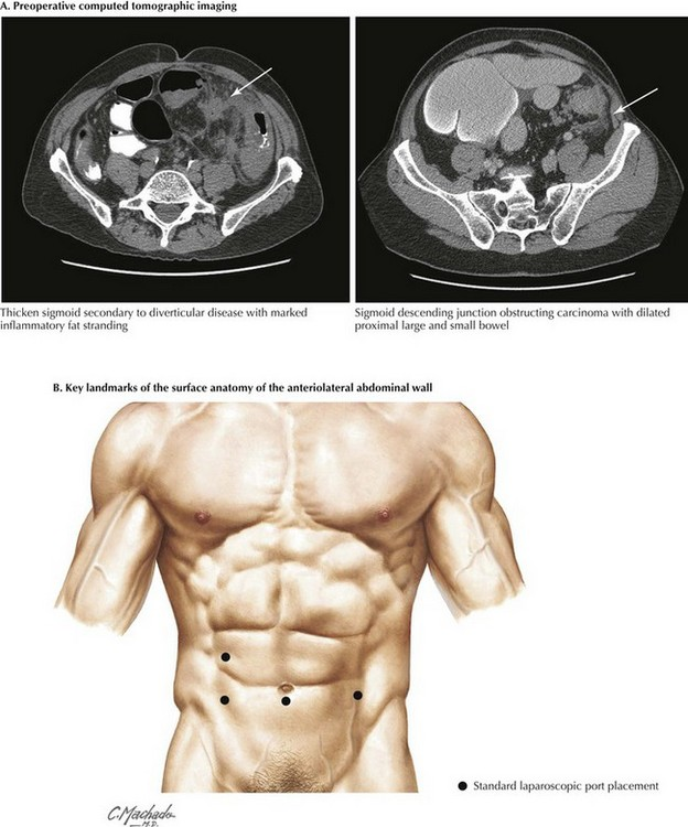 Left Colectomy Clinical Gate