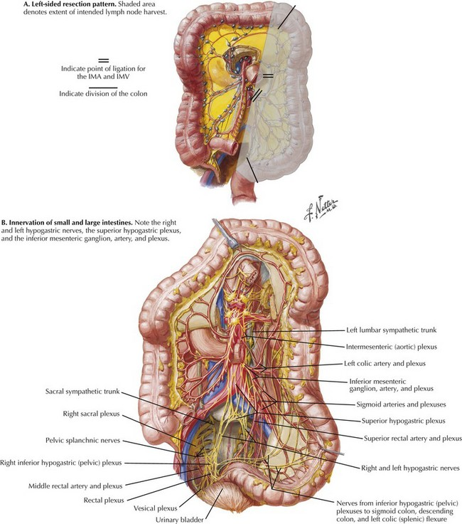 Left Colectomy | Clinical Gate
