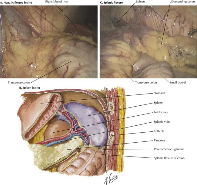 Right colectomy anatomy