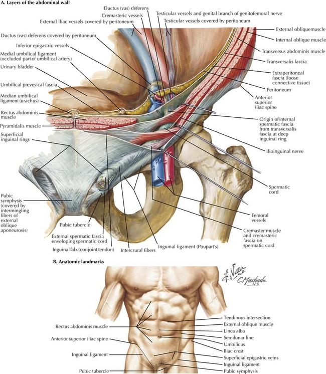 Open Inguinal Hernia Repair | Clinical Gate