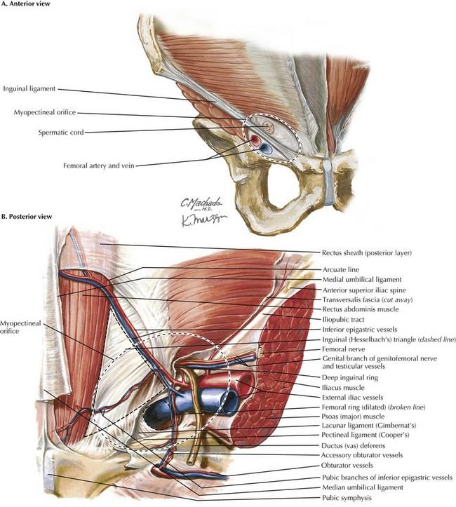 Laparoscopic Inguinal Hernia Repair Clinical Gate