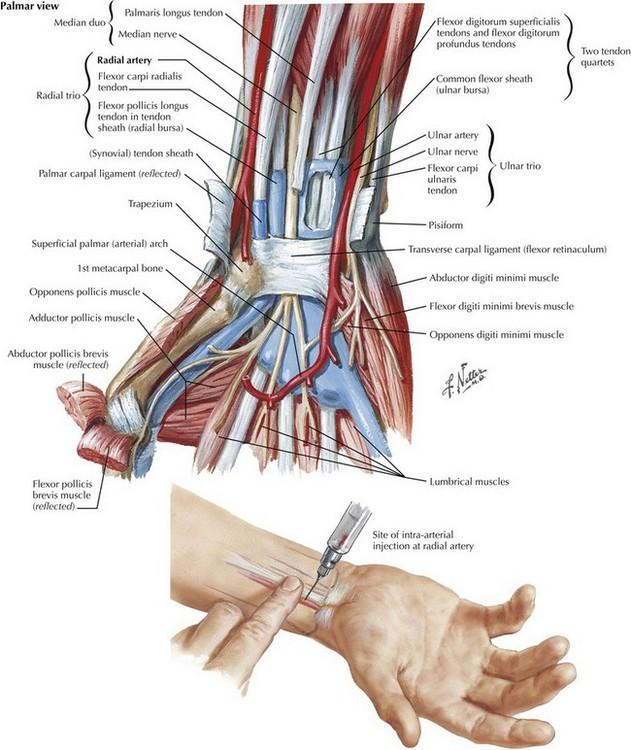 Arterial Line Anatomy Clinical Gate