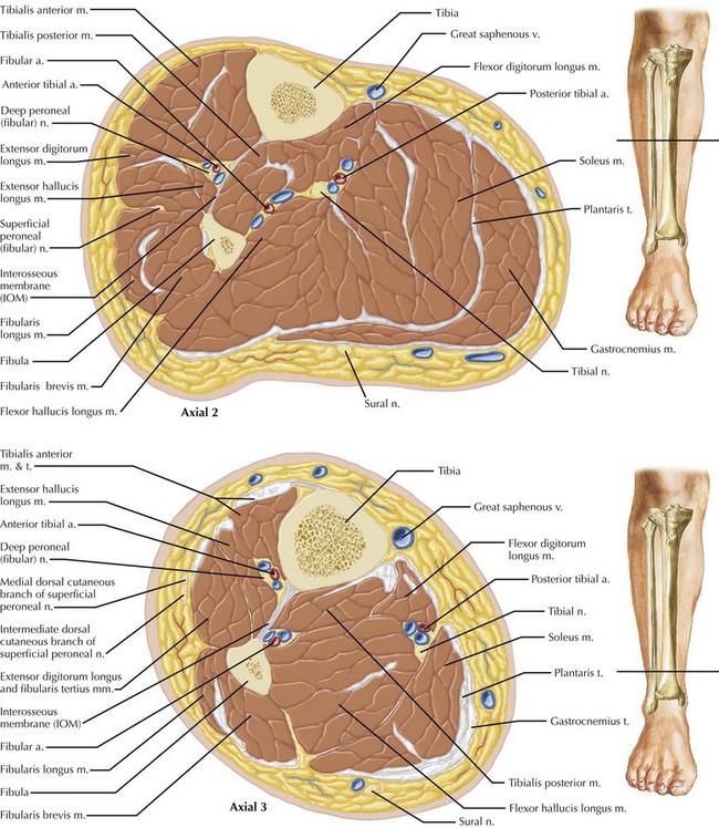 Leg and Forearm Fasciotomy | Clinical Gate