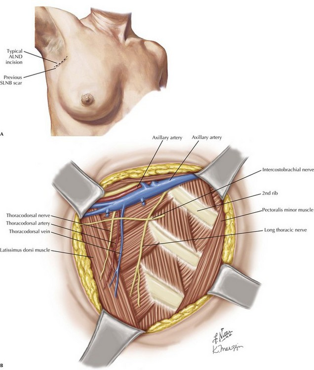 Axillary and Inguinal Lymphadenectomy | Clinical Gate