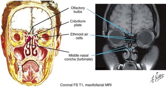 Sinonasal Cancer Clinical Gate
