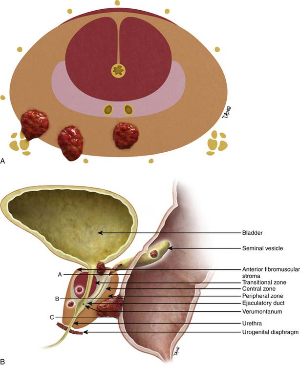 Prostate Cancer | Clinical Gate