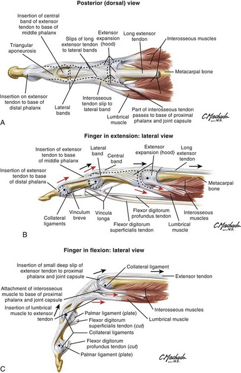 Extensor and Flexor Tendon Injuries in the Hand, Wrist, and