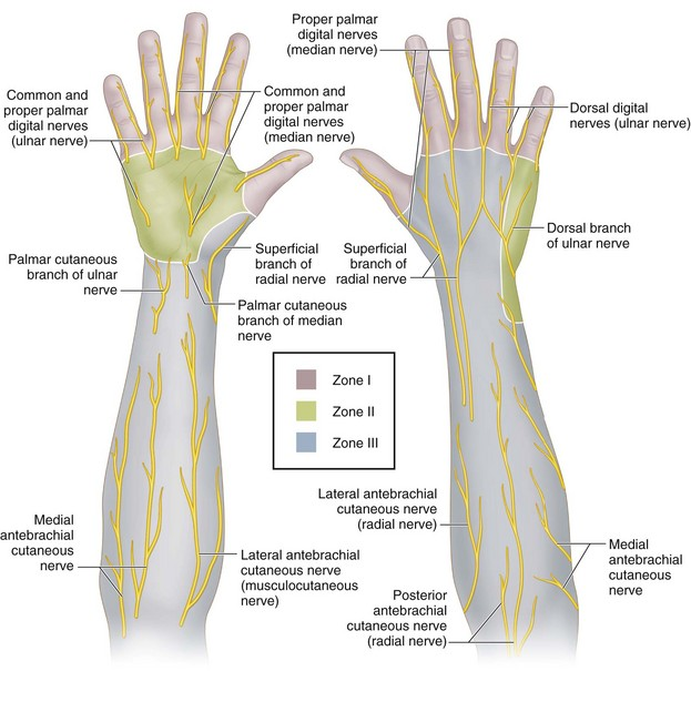 17: Surgical Treatment of Neuromas in the Hand | Clinical Gate