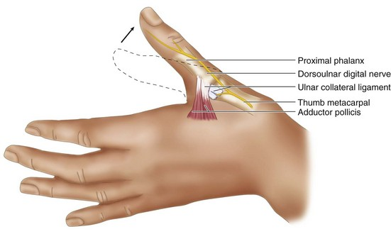 58: Skier\'s Thumb: Repair of Acute Thumb Metacarpophalangeal Joint ...