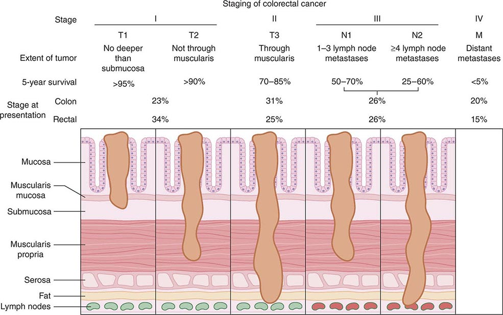 Pancreatic Cancer | Clinical Gate