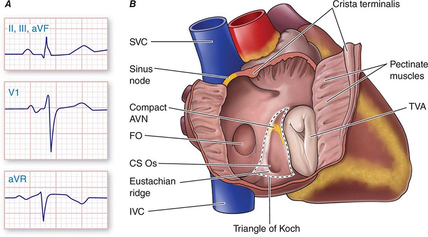 The Bradyarrhythmias: Disorders of the Atrioventricular Node ...