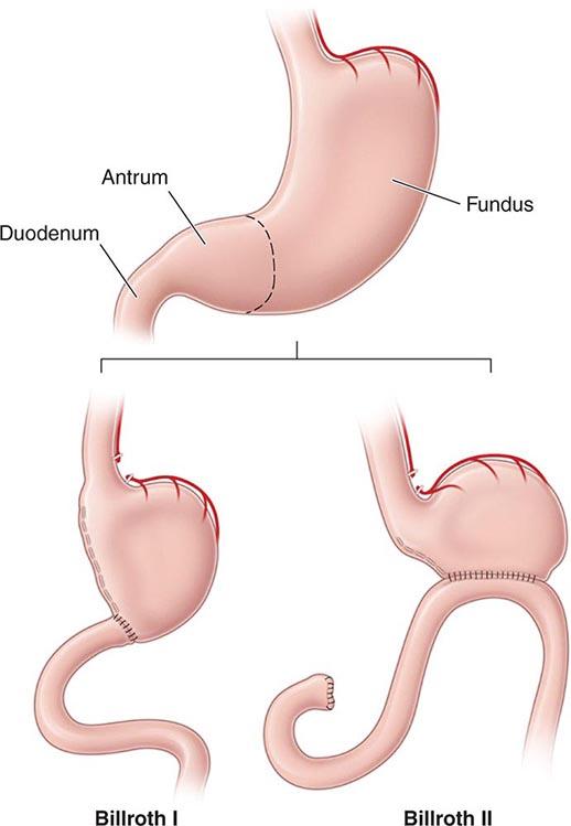 Inflammatory Bowel Disease Clinical Gate