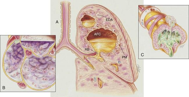 Lung Abscess   Clinical Gate