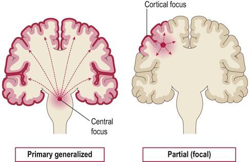Epilepsy | Clinical Gate