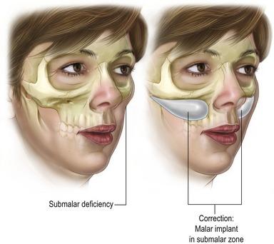 Total facial alloplastic augmentation | Clinical Gate