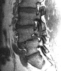Picture of spondylothesis