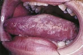 Oral Disease and Oral-Cutaneous Manifestations of