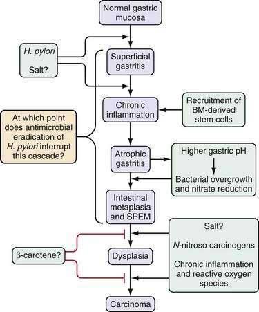 gastric cancer pathophysiology