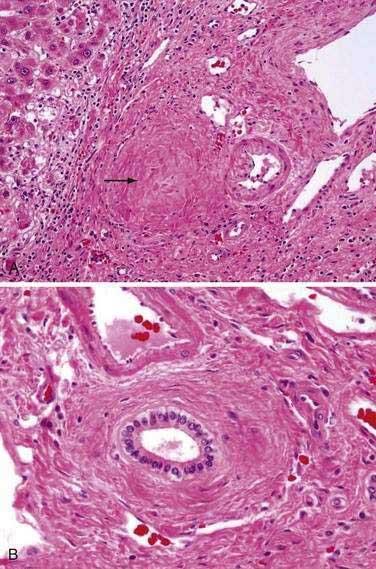 Sclerosing Cholangitis and Recurrent Pyogenic Cholangitis