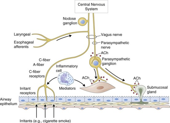nonsteroid antienflamatuar jel
