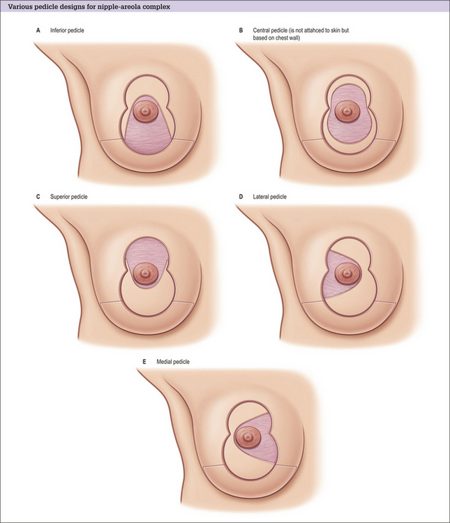 Becoming Breast Aware