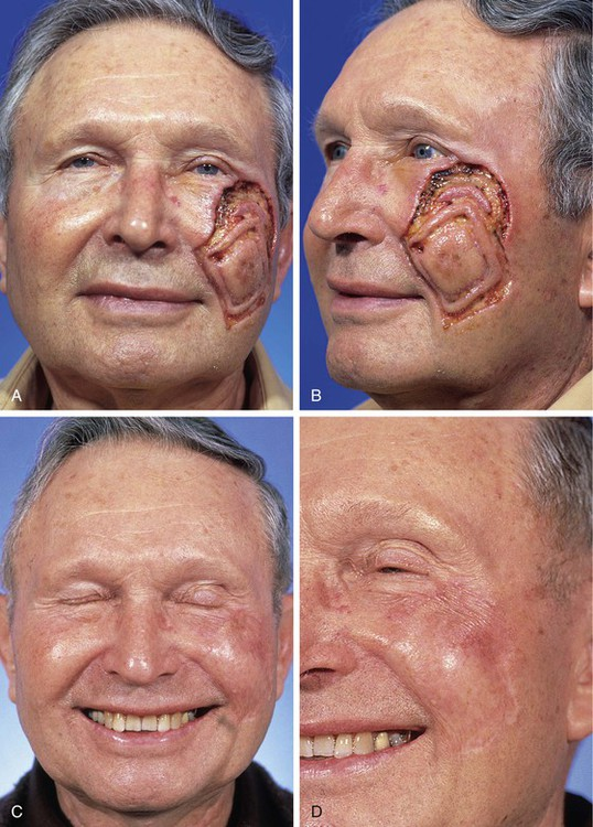 Skin and Composite Grafts   Clinical Gate