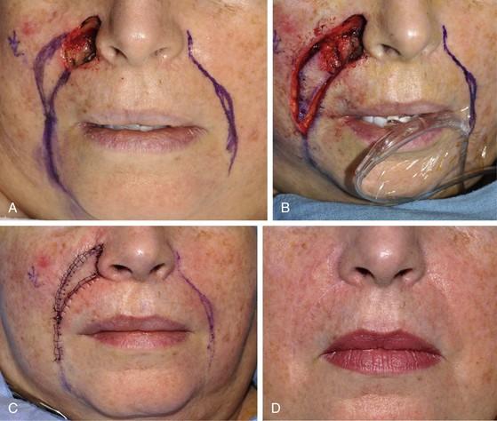 Facial skin flap repair pictures — photo 8