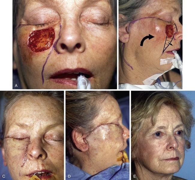 Facial skin flap repair pictures dutt