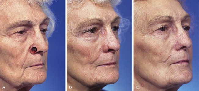 Scar Revision and Local Flap Refinement | Clinical Gate