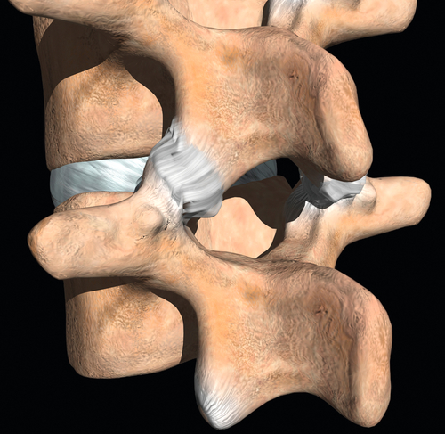 ++ lumbar facet arthropathy icd 10