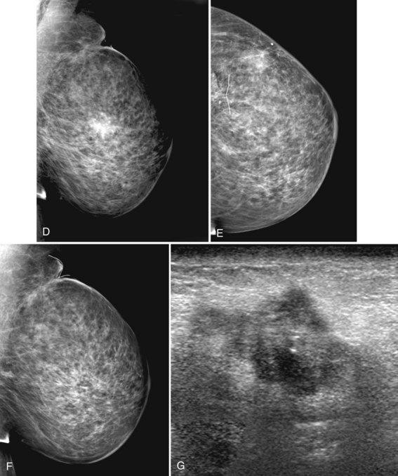 Mammogram Interpretation | Clinical Gate