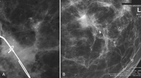 Breast biopsy calcifications