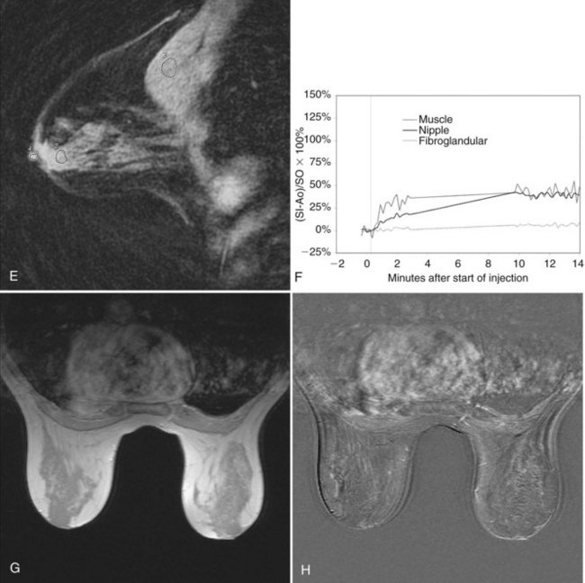 Figure 7-4 Normal breast magnetic resonance imaging (MRI). A, Axial  T1-weighted spin-echo images reveal high-signal fat within the breast and  axilla.