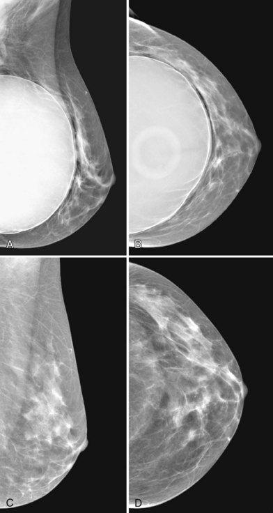 Silicone Implant Study 29