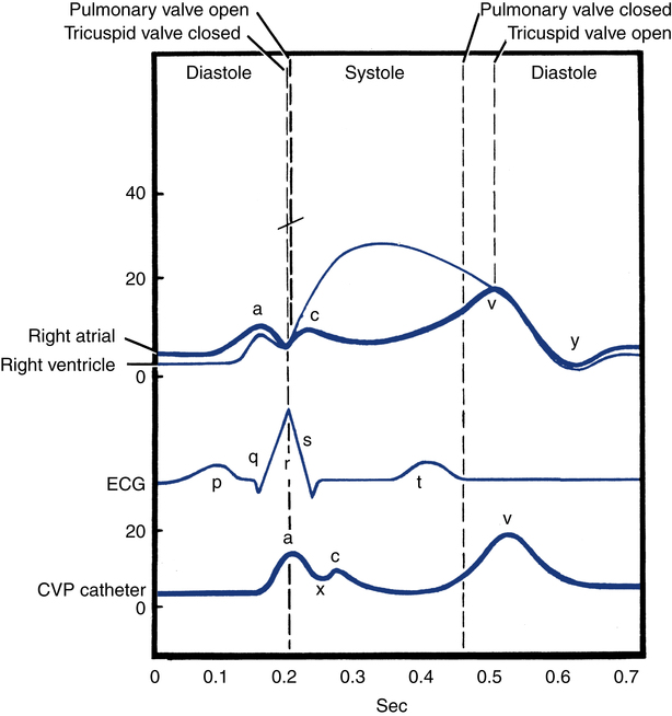 Vascular Pressure Monitoring Clinical Gate