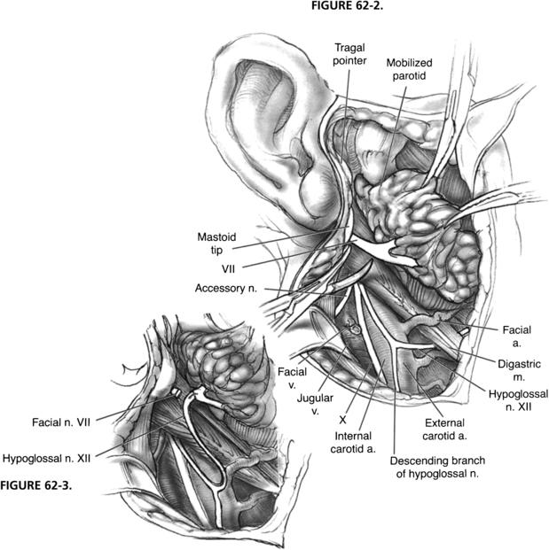 Hypoglossal facial nerve anastomosis