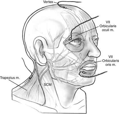 Xomed Facial Nerve