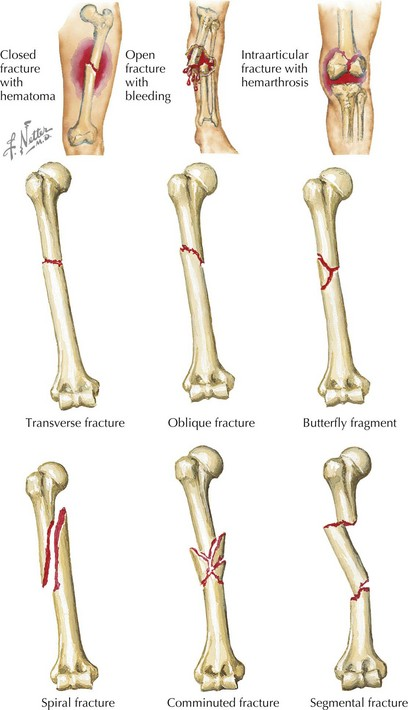 a description of bone fractures A comminuted fracture is a break or splinter of the bone into more than two fragments since considerable force and energy is required to fragment bone, fractures of this degree occur after high-impact trauma such as in vehicular accidents.