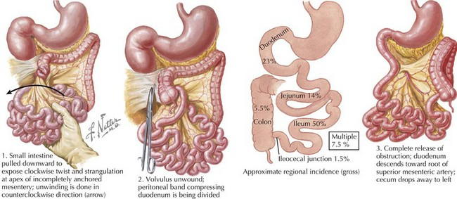symptoms of lack of testosterone