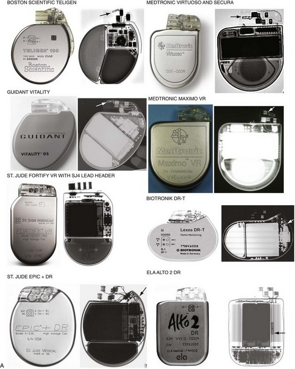 implantable-cardioverter-defibrillator-device