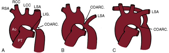 Coarctation of the Aorta and Interrupted Aortic Arch | Clinical Gate