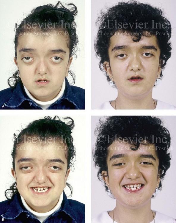 pfeiffer syndrome thumb 30633 loadtve