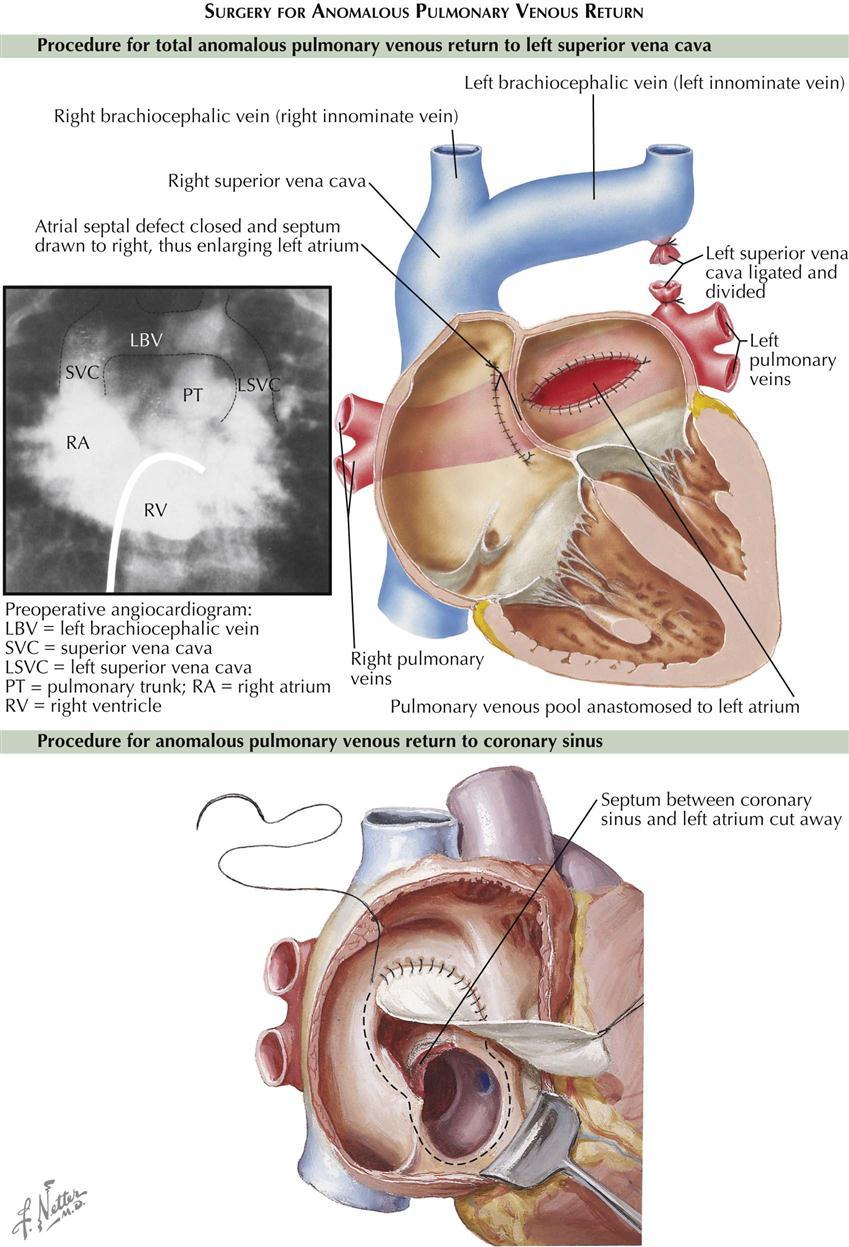 5. Congenital Heart Disease   Clinical Gate