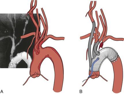 brachiocephalic artery   clinical gate, Sphenoid