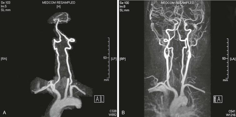Vertebral Artery Disease   Clinical Gate