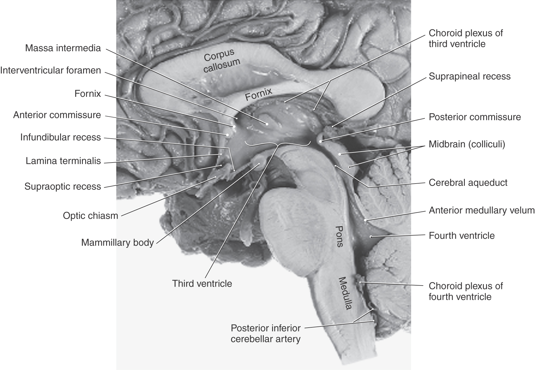 The Ventricles Choroid Plexus And Cerebrospinal Fluid Clinical Gate