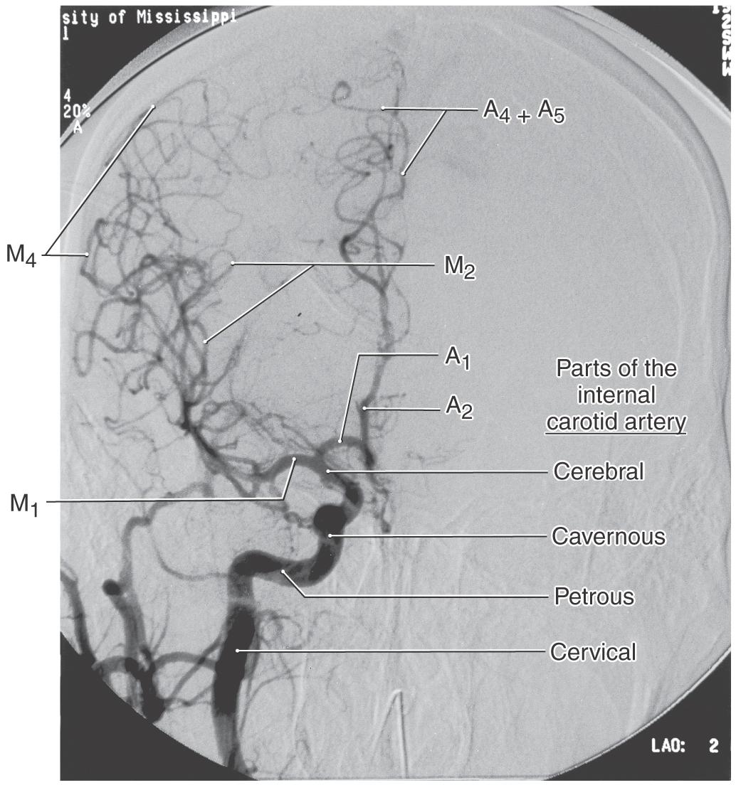 Fine Mri Brain Angio Anatomy Image Collection - Anatomy Ideas ...