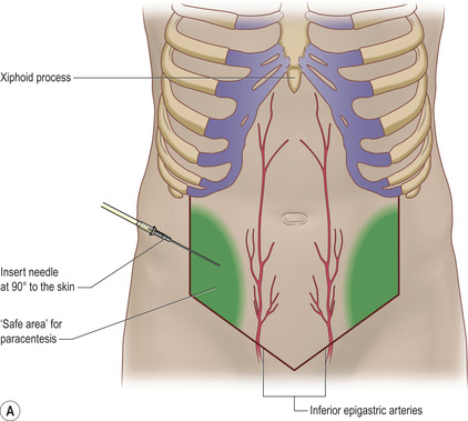 16. ABDOMINAL PARACENTESIS AND ASCITIC DRAIN INSERTION | Clinical Gate